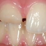 Odonto-pediat-A-0048_web-1200x800