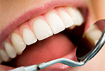 Hai paura del dentista?